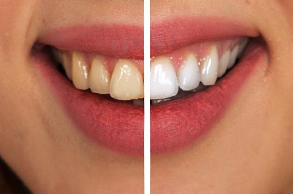 Gyakran felmerülő kérdések a fogfehérítésről – A fogorvos válaszol